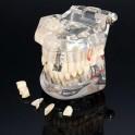 Model chrupu Transparent De Luxe